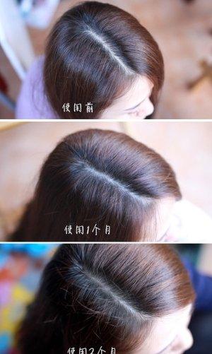 秋天脱发吃什么好 防止掉发的食物